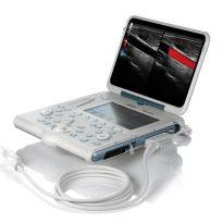 Мобильный ультразвуковой аппарат Esaote MylabAlpha